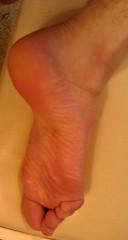 IMG_20160430_165919 (allroundeye) Tags: male feet toes heel ankle wrinkles bigfeet malefeet wrinkledsoles solewrinkles