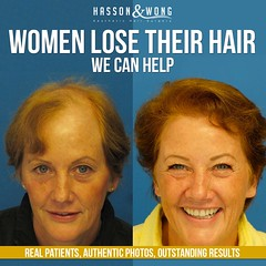 hair-transplant-fb (hasson_and_wong) Tags: female hair women bald baldness hairloss transplant alopecia hairtransplant hassonandwong