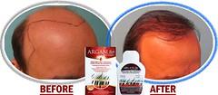 Arganlife Hair Loss Before & After (ArganLife Professional Hair Care Products) Tags: loss hair before shampoo after products organic naturalhair hairloss regrowth regrow hairshampoo arganlife