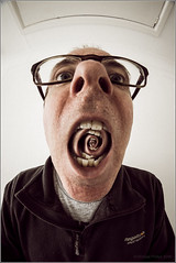 Sore Throat (mikeyp2000) Tags: mouth open wide fisheye throat sore selfie droste