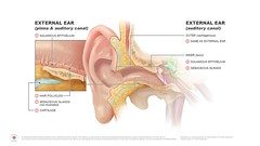 Ear illustration of local causes of ear pain by Annie Campbell (dundeetilt) Tags: illustration inner medical anatomy ear outer middle universityofdundee referred medicalillustration medicalart otalgia