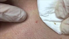 BLACKHEADS Removal Professional Extraction (johnanderson11) Tags: professional removal extraction blackheads