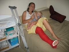 kwalker_02 (cb_777a) Tags: usa broken foot toes leg cast crutches ankle