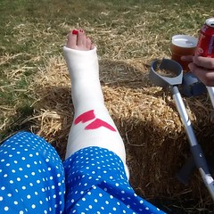 nb_10425169182_n (cb_777a) Tags: england broken foot toes leg cast crutches ankle