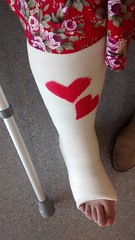 nb_BtD6aa0IYAAe1fb (cb_777a) Tags: england broken foot toes leg cast crutches ankle