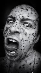 GraGraraPpPaaAaAGraa!!!! (shaplov) Tags: bw selfportrait chickenpox