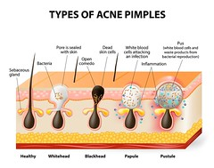 Types Of Acne Pimples (raahnaturalcare) Tags: white illustration hair dead blood skin body tissue cell science formation clear medical problem health human diagram anatomy medicine layers waste disorder care biology bacteria healthcare vector disease infection humanbody attacking pus treatment haircare pimple bacterial physiology acne sebaceous humananatomy inflammation follicle blackheads dermis pore epidermis skincare bodycare pustule gland bloodcells sebum papule comedo whiteheads hairtreatment comedones healthyskin healthybody cellsbiology microcomedones
