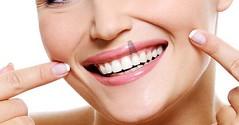 @clinicaswhite : PBX +57(1)6222293 : http://ift.tt/1F9NXpp : clinicaswhite.com (clinicaswhite) Tags: les de la los bogota y para son que personas uno una gran sonrisa diseo falta sus hace todas relleno mejor dientes quiere reinas solucin oseo implantes dentales aquellas lucir odontopedriatra