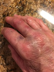 72 Hours (Vegan Feast Catering) Tags: fall hand wrist process fracture mua