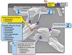 Extensively Drug-Resistant Tuberculosis (XDR TB) - Options for Treatment (NIAID) Tags: tb tuberculosis xdrtb mycobacteriumtuberculosis