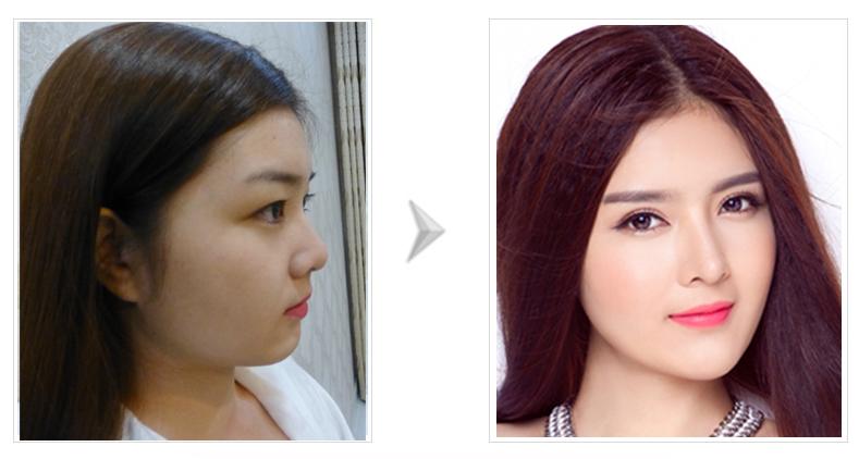Phẫu thuật khuôn mặt đẹp với bác sĩ Hàn Quốc