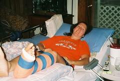 kierce6_07 (cb_777a) Tags: usa broken foot toes leg cast crutches ankle