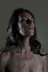 Self portrait with infectious disease (emanuela franchini) Tags: portrait self pain skin tragedy conceptual drama chickenpox itchy emanuelafranchiniphotography