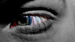 (Ilunes) Tags: blackandwhite eye vision bloodshot trauma