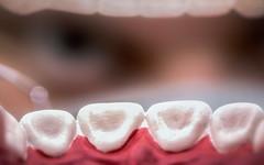 Say AHHHHHH 36/366 (Skley) Tags: bokeh medizin mund zhne zahn gesundheit zahnarzt 2016 karies arzt prophylaxe untersuchung vorsorge zahnfleisch 36366 mundraum zahnvorsorge