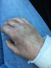 No, I am not a tennis pro, this is 24 hours after my mua. (Vegan Feast Catering) Tags: dog fall push wrist fracture mua mummyhand