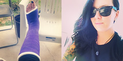 afox_joined (cb_777a) Tags: broken foot toes leg australia cast ankle