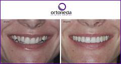 ORTODONCIA DAMON (ORTONEDA CLINICA DENTAL- TARRAGONA) Tags: invisible bracket dental nios brackets bueno tarragona adolescentes clinica mejor dentista incognito lingual invisalign ortodoncia dentistas dentistatarragona