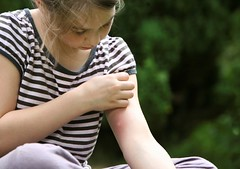 girl with mosquito bite, scratching hand has motion blur (nikas.mandel) Tags: white girl face female sitting hand arm outdoor bugs mosquito bite lookingdown itchy scratching stripy
