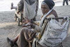 INDIA7703 (Glenn Losack, M.D.) Tags: india glenn photojournalism varanasi lepers leprosy handicapped deformed banaras beggars losack