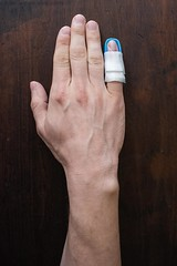 61/366 Mar 1 (BrianGoPhoto) Tags: hand finger pinky 365 fracture splint 366 project366 366project