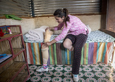 To prevent the prosthetic from rubbing her leg Uma must wear a bandage on a protective layer over her stump (Handicap International UK) Tags: nepal earthquake uma kathmandu survivors disability silwal