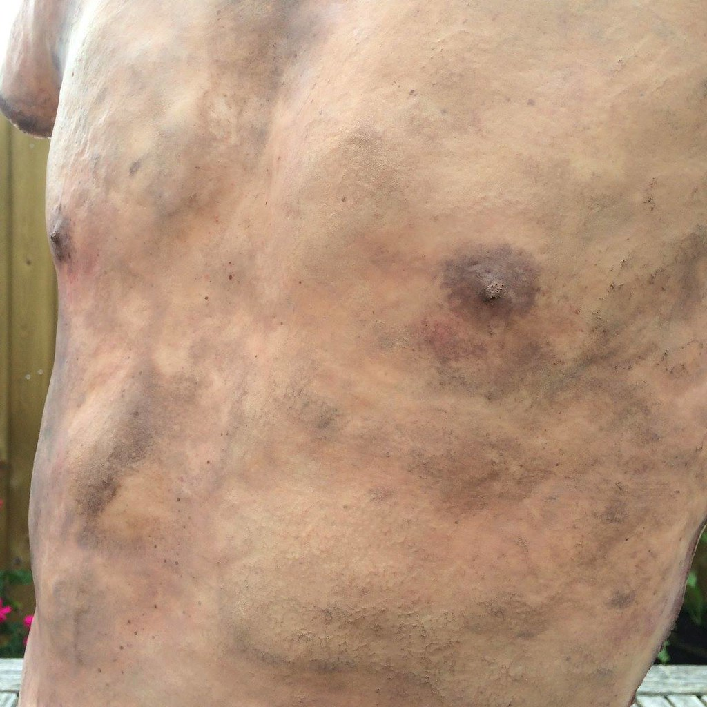 Flayed skin