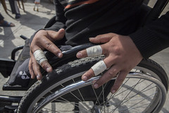 Ramesh shows his plastered fingers after finishing sixth in the race (Handicap International UK) Tags: nepal earthquake kathmandu survivors disability