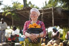 13 de junio: Mujer albina en África (Txaro Franco) Tags: mujer áfrica albina albinismo mozambique sonrisa vendedora mercado fruta 13dejunio díainternacionaldesensibilizaciónsobreelalbinismo