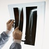 Stock Images (perfectionistreviews) Tags: 4550years color bodypart square indoors middleagedman medical onepersononly studioshot man male xray radiology diagnosis bone bones hands healthcare orthopedics surgeon injury caucasian patient photograph middleaged