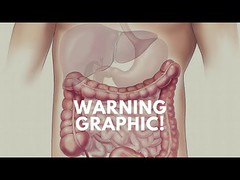 2 Foot+ Rope Worm Parasite. Warning Graphic!!! (soconaturalhealth) Tags: 2 foot rope worm parasite warning graphic