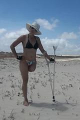amp-1636 (vsmrn) Tags: amputee woman crutches onelegged stump