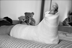 Still life (Jean-Luc Léopoldi) Tags: accident fracture brokenankle teddybears nounours toes orteils lit bed lying rest repos plâtre leg
