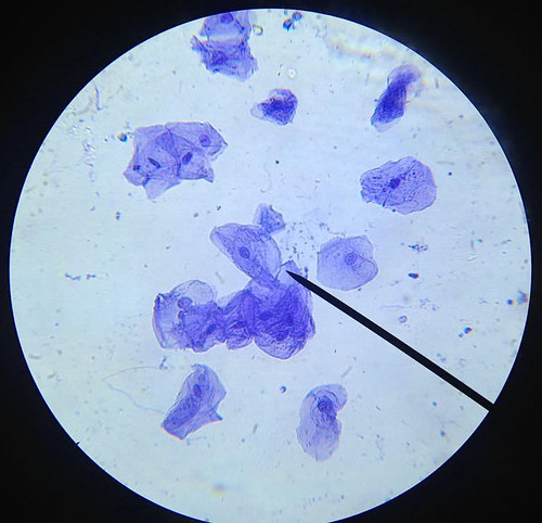 cheek-cells-01