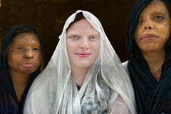 skin project (silvia.alessi) Tags: ngc skin india albino albinism acidattack asia violence delhi women portrait people project strong brave house