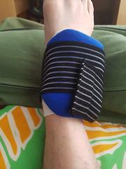 Sprained Ankle (Bracus Triticum) Tags: sprained ankle calgary カルガリー アルバータ州 alberta canada カナダ 4月 四月 卯月 shigatsu uzuki unohanamonth 2018 平成30年 spring april