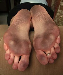 ty34 (paulswentkowski1983) Tags: dirty feet soles female street calloused calliused pitch black