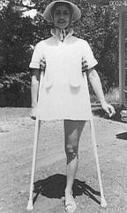1960s Vintage Amputee 05 (jackcast2015) Tags: handicapped disabled disabledwoman cripledwoman onelegwoman oneleggedwoman monopede amputee legamputee crutches crippledwoman