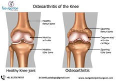 knee replacement cost in hyderabad (navigationjointreplacement) Tags: breakdown human orthopedic arthritis rheumatism disease skeleton biology spurring pain cartilage stiffness scientific science healthy spur illustration knee biological rheumatoid osteoporosis painful patella normal medication rough anatomical synovial body capsule leg bone movement osteoarthritic surgery osteoarthritis skeletal erosion anatomy doctor femur fibula health joint label ligament medicine meniscus india