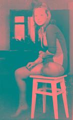 1960s Vintage Amputee 01 (jackcast2015) Tags: handicapped disabled disabledwoman cripledwoman onelegwoman oneleggedwoman monopede amputee legamputee crutches crippledwoman