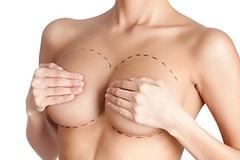 Aumento mamario (fabianzambranomendoza) Tags: aumentomamario mastoplastia cirugía colocación implentes silicona incisión región submamaria periareolar prótesis subglandular glándulamanaria submuscular pectoral