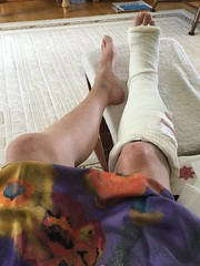 Well that's cut my gallop! (Martellotower) Tags: broken ankle foot accident fall
