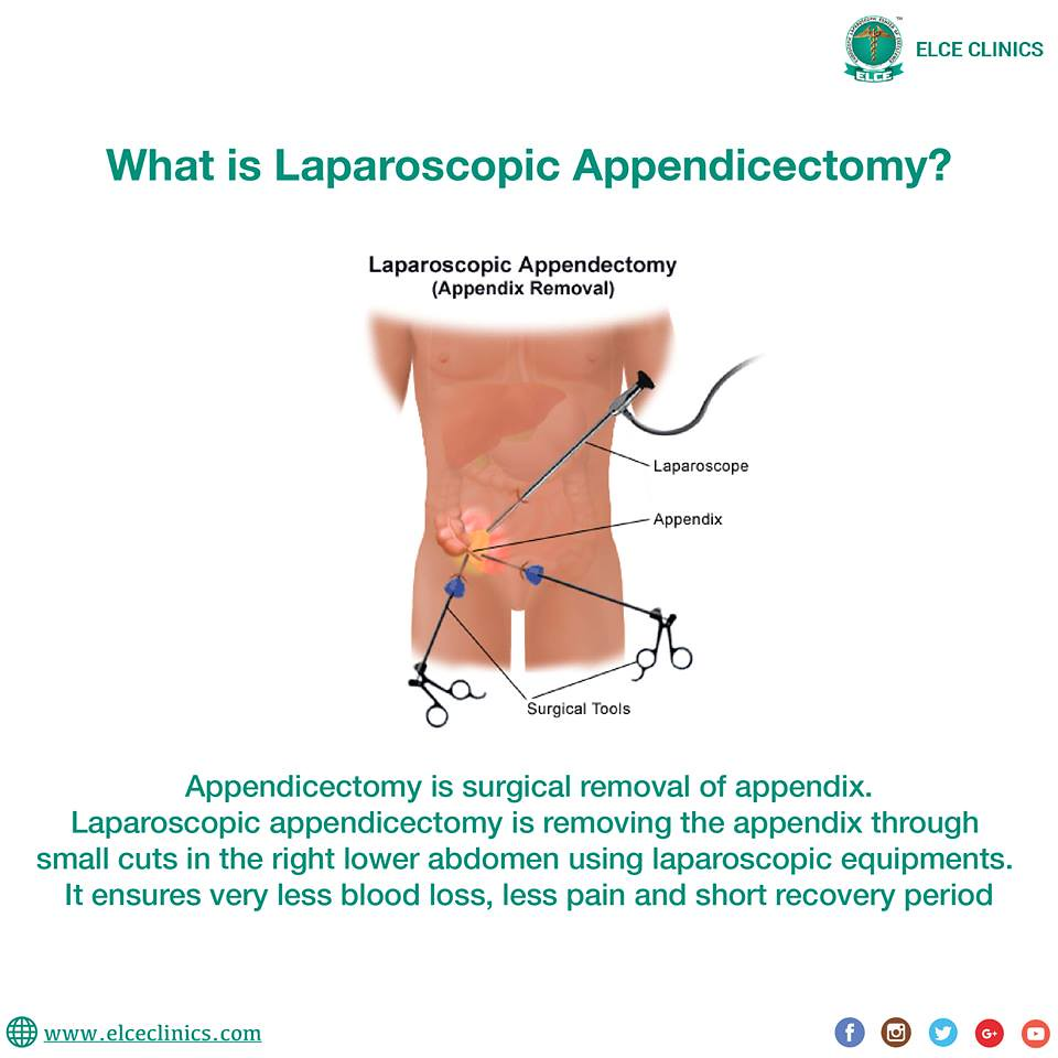 The Worlds Most Recently Posted Photos Of Appendix And Surgery Hive Wiring Diagram Laparoscopic Appendicectomy Elce Clinics Amp Hospitals Tags Laparoscopy Awareness Teamelce
