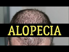 Best Diet and Healthy Recipes - Video : 20 Best Foods For Alopecia (Hair Loss)