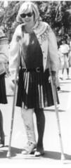 1960s long leg cast woman on crutches (jackcast2015) Tags: handicapped disabledwoman crippledwoman crutches brokenleg legcast longlegcast womaninlegcast cast