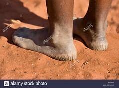kalahari-desert-bushman-woman-with-cracked-heels-M11PHT (Matriux2011) Tags: barefoot dirtysoles cracksoles indian nepali barefootextreme talonescurtidos piesrajados