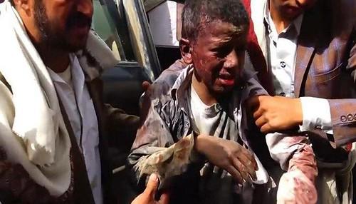 Yemen school bus bombing victim, 40 children died, 79 wounded. August 2018