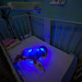 A newborn infant receives phototherapy to treat jaundice at the UNICEF-supported Neonatal Intensive Care Unit (NICU)