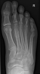 How does this type of fracture classically occur? ANSWER: https://goo.gl/6PzHJk Case courtesy of Paul Heyworth (Radiology Signs) Tags: radiology medicine doctors radiologists xray