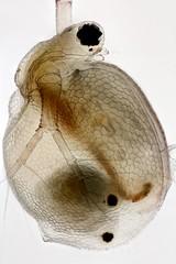 Ceriodaphnia (mr.sansibar) Tags: bh2 arthropoda freshwater pond aquatic zooplankton crustacea heliconfocus waterflea microscopy photomicrography ceriodaphnia cladocera focusstacking olympusbh2 planapo